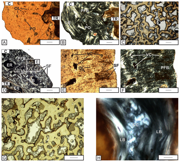 Histological details of the quadrate (A–C) and exoccipital (D–H) of Metoposaurus krasiejowensis skull (UOPB 01029) from the Late Triassic of Poland.