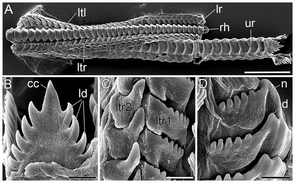 SEM micrographs of the radula of B. boucheti n. sp.