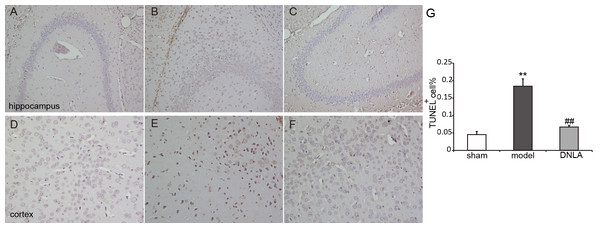 Images of TUNEL staining.