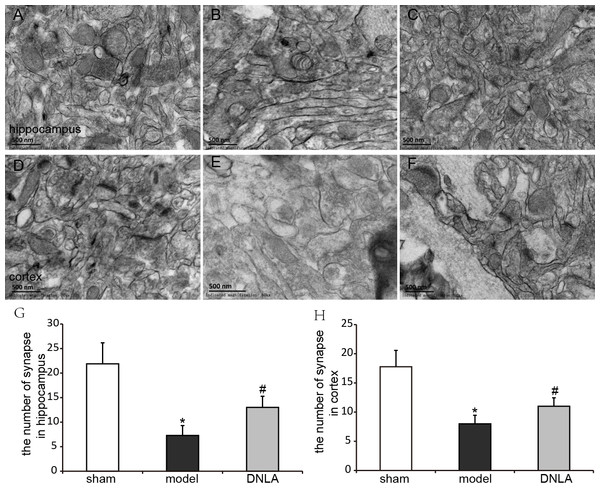 Effects of DNLA on neuronal synapses in Aβ25–35-injected mice.