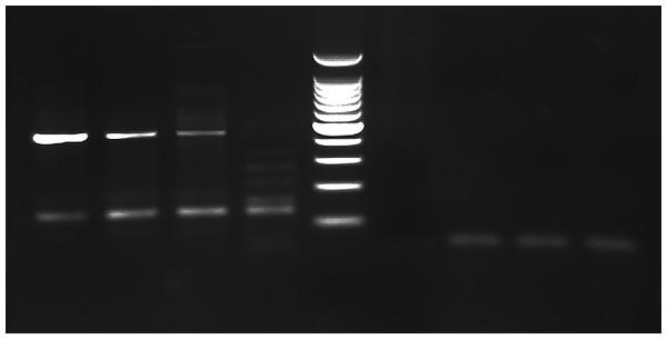 PCR gel.