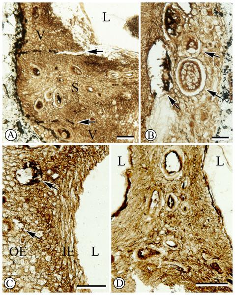 Anatomy of endocarp tissues.