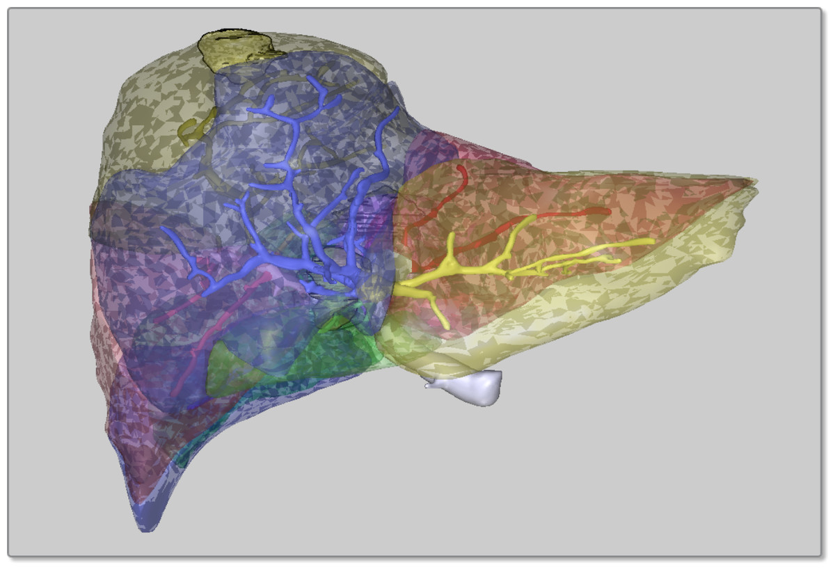 segmentation thesis Abstract: in recent years, medical image analysis technology has grown rapidly several algorithms have been developed to segment and.