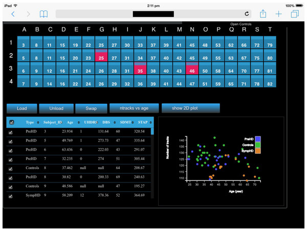 A screenshot of the iPad within the Monash CAVE2 showing the integration between analysis and comparative visualisation: querying all plotted brain data and summarizing the results in an interactive scatter plot.