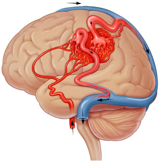 Cerebral Arteriovenous Malformation (CAVM).