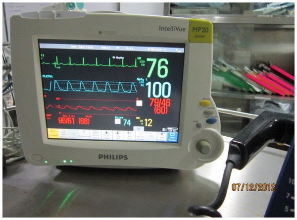 Clinical pressure measurements.