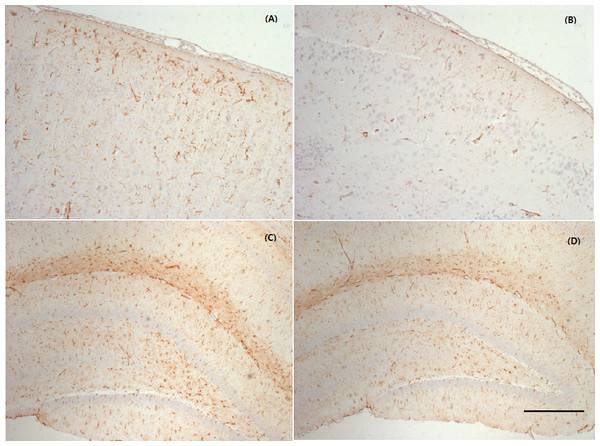 Representative photographs of the cerebral cortex and hippocampus samples showing GFAP expression.