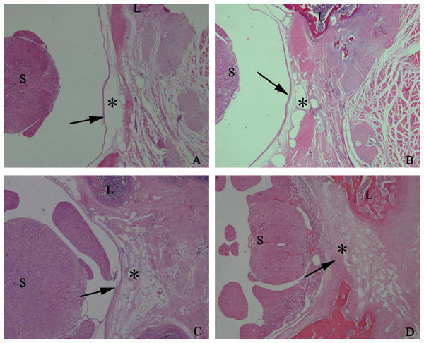 The effect of HCPT on epidural fibrosis in rats.