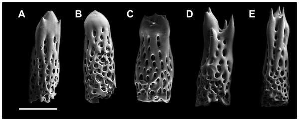 Abactibal spines of the paxillae located at the base of ray.