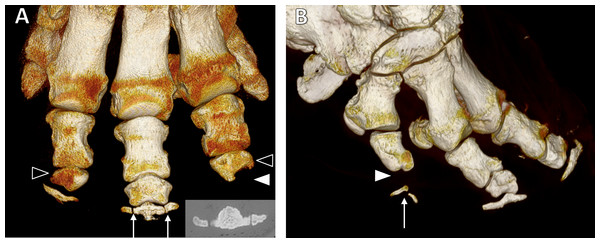 Three-dimensional reconstructions from CT scans.
