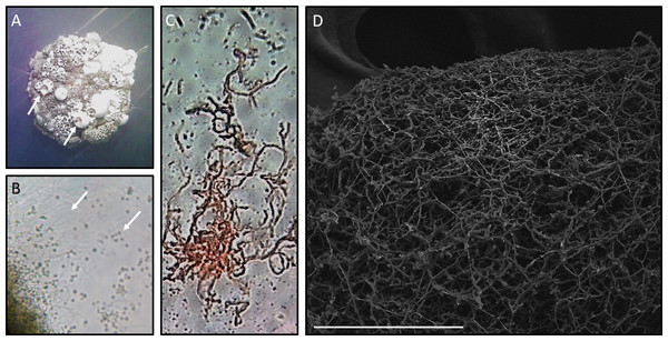 Microscopy of Streptomyces sp. H-KF8.