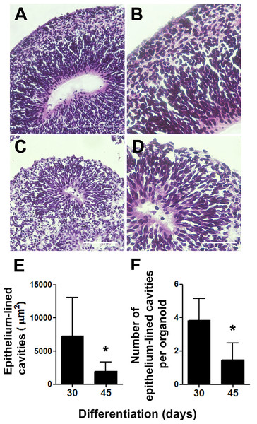 Cerebral organoids present epithelium-lined cavities morphologically similar to ventricles.