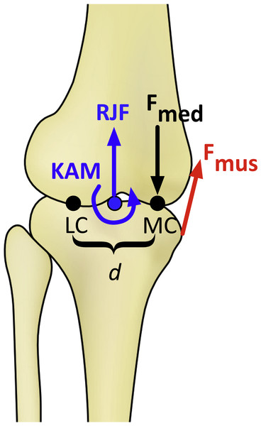 Schematic of the knee model in the frontal plane for calculating the medial knee joint contact force (Fmed).