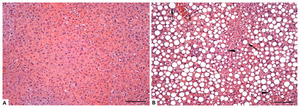 Photomicrograph of the liver tissue CT and OB groups (A) Control group showing normal liver parenchyma. (B) Obese group showing microvesicular (arrowheads) steatosis, but mainly the presence of large negative cytoplasmic vacuoles (arrow) that pushes the nucleus to the periphery of the hepatocyte, increases its size and compress the sinusoid capillaries.