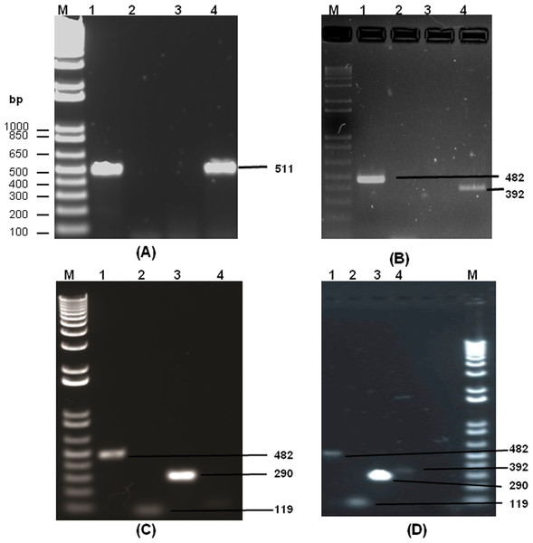 The agarose gel images (1%) showing the amplified DNA from dengue viral genome using RT-PCR.