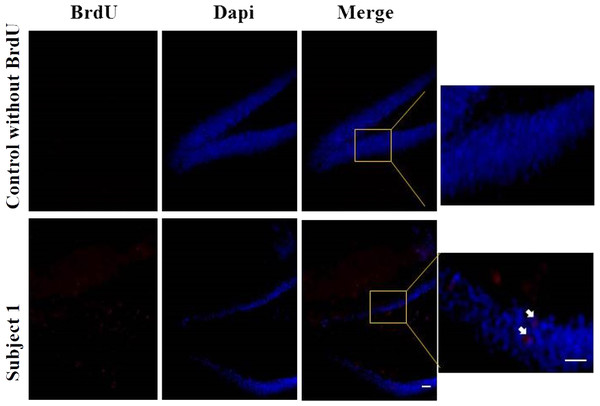 Neurogenesis in dentate gyrus by exercise induced.