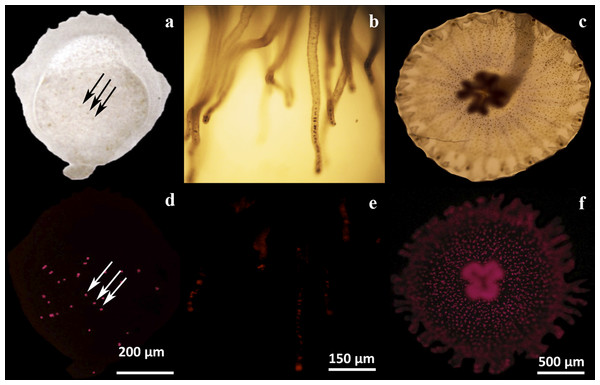 Microscopic analysis of Symbiodinium presence on three physiological stages of Cassiopea xamachana.