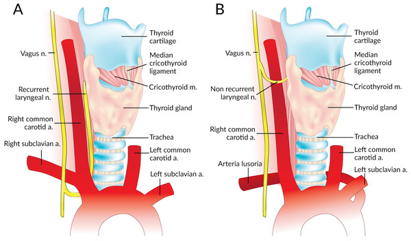 Normal right recurrent laryngeal nerve (A) and right non-recurrent laryngeal nerve in the presence of an aberrant subclavian artery (B).