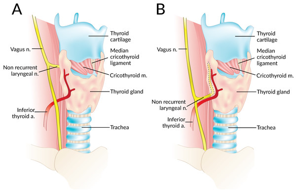 A non-recurrent laryngeal nerve originating from the vagus nerve above (A) and below (B) the laryngotracheal junction.