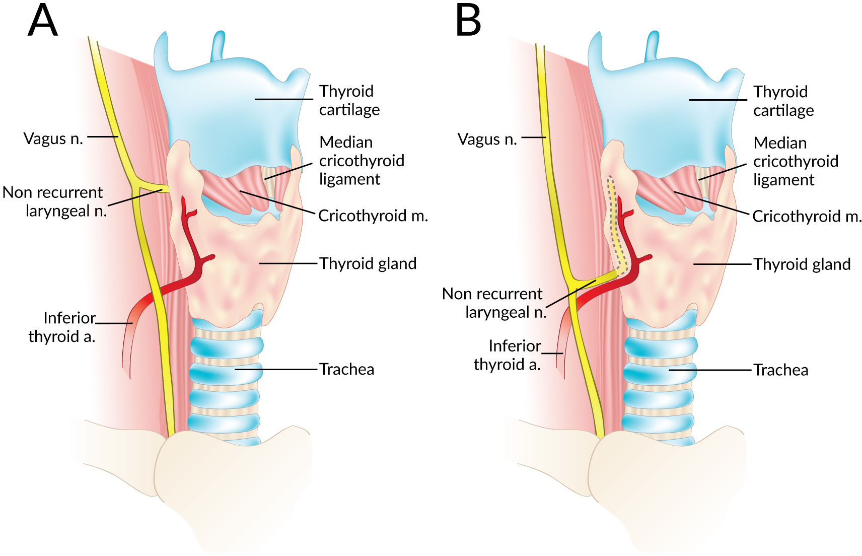 The Non Recurrent Laryngeal Nerve A Meta Analysis And Clinical
