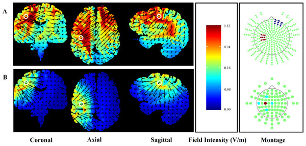 Finite element models of conventional (A) and HD-tDCS (B) of the right hand motor cortex (C3) using HDExplore computational modelling software.
