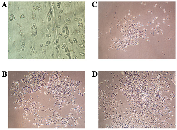 (A) Thin slice of cartilage for primary chondrocyte isolation; (B–D) the primary human chondrocyte culture in a monolayer after 3, 6 and 9 days, respectively.