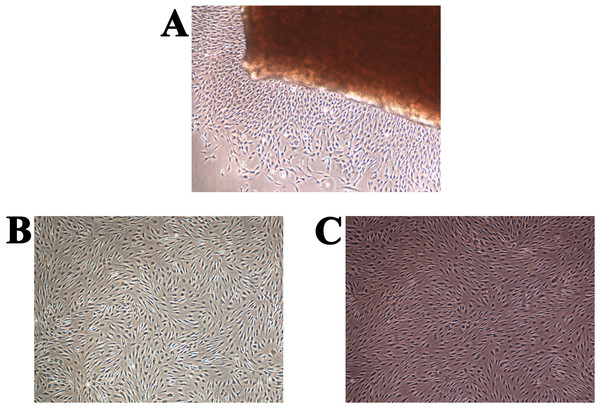 "Human chondrocyte culture: (A) the explant culture of chondrocytes (""primary culture""), (B) monolayer of chondrocytes after first passage, and (C) monolayer of chondrocytes after the second passage."