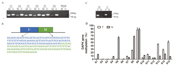 Quantitative detection of DAPK promoter methylation in breast cancer samples.