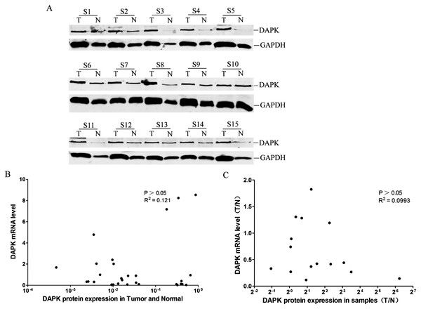 Analysis of the correlation between DAPK mRNA and protein expression in breast cancer samples.