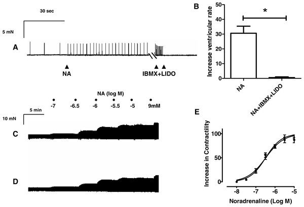 Effects of lidocaine on proarrhythmic and inotropic responses to IBMX and noradrenaline, respectively, in rat ventricular myocardium.