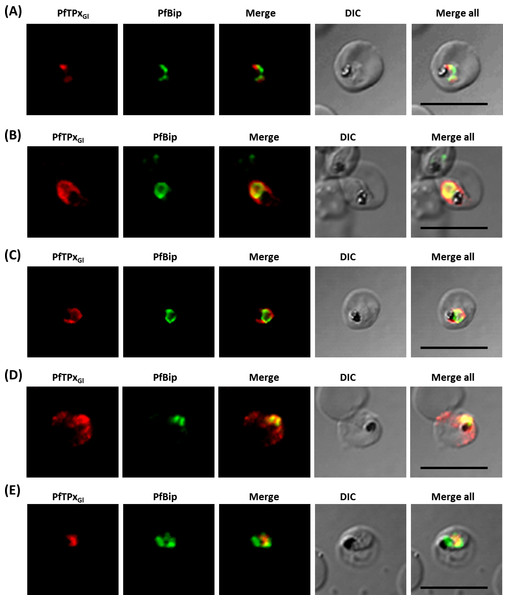 Immunofluorescence images showing the endoplasmic reticulum (ER) morphology in AlF4− and vinblastine treated parasites.
