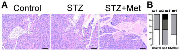 Effect of metformin treatment in STZ-induced diabetic mice on insulitis in pancreatic islets
