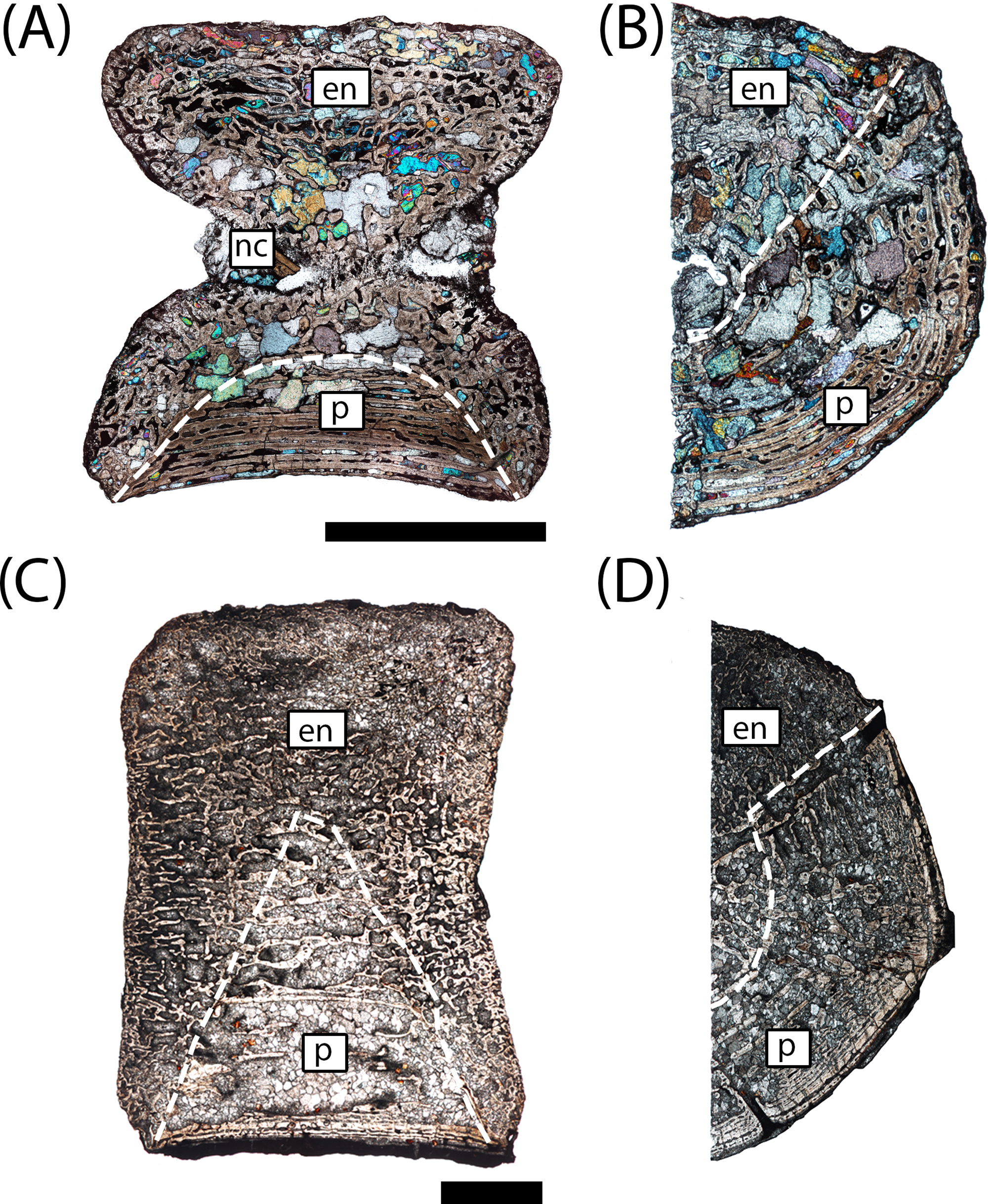 Microanatomy and paleohistology of the intercentra of North
