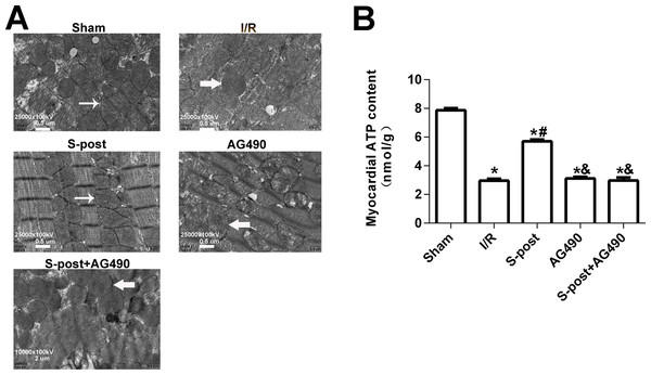 S-post alleviated mitochondrial ultrastructural damage and improved myocardial energy metabolism.