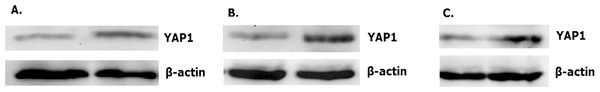Overexpressed hsa-miR-138-2-3p down-regulated expression of YAP1.