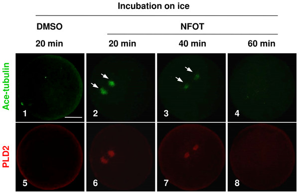 The spindle microtubules were stabilized in oocytes with PLD2 inhibition with NFOT.