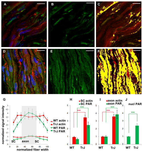 F-actin increase inTr-J mice sciatic nerves was paralleled by PAR increase.