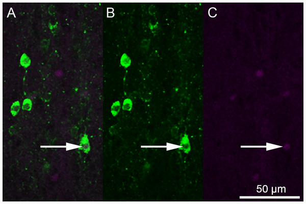 Photomicrographs depicting immunofluorescent labeling of 5-HT (green) and Fos (magenta).