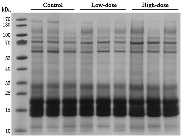 SDS-PAGE of urinary proteins in control group, low dose AVP group and high dose AVP group.