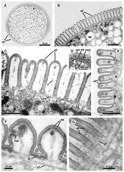 Transmission electron microscopy of Ancora sagittata.