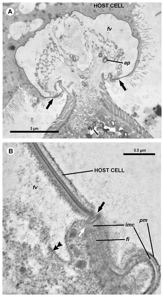 Transmission electron microscopy of the attachment apparatus of Ancora sagittata.