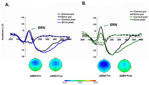 Error-related ERPs as a function of condition assignment (A, control condition; B, ritual condition), trial type (correct, dotted lines; errors, solid lines) and manipulation time-point (pre-rounds, black lines; post-round, colored lines).