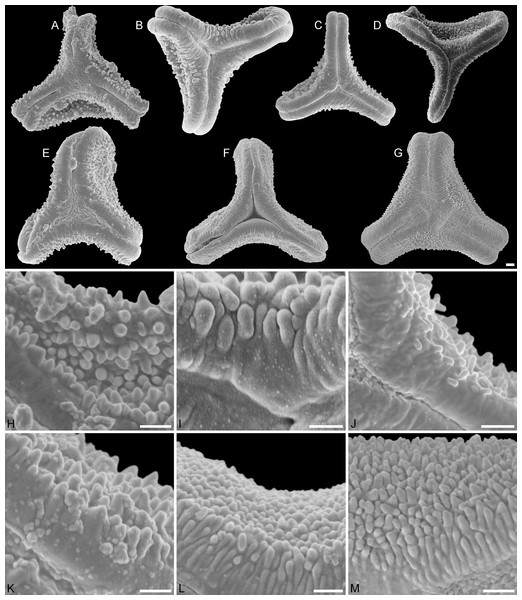 SEM micrographs of fossil Loranthaceae pollen similar to/intermediate between root parasites and Lorantheae and comparable extant pollen.