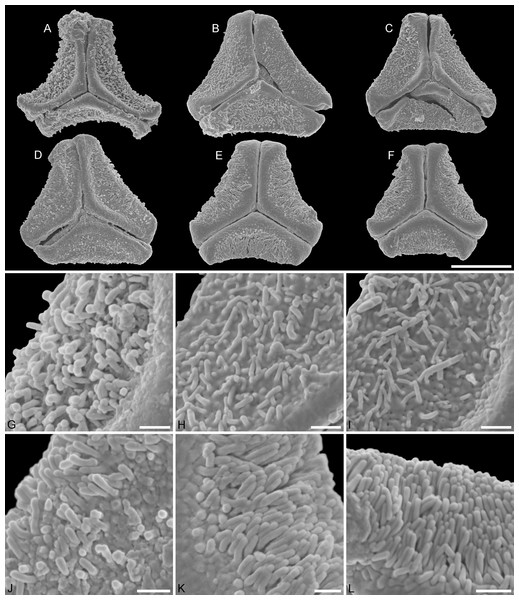 SEM micrographs of fossil Loranthaceae pollen with affinity to Tripodanthus and extant pollen of the genus.