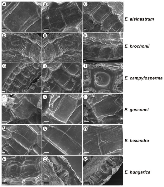 The diversity in seed coat micromorphology of Elatine alsinastrum (a–alsHu; b, c–alsPL1), E. brochonii (a, b–broMO; c–broSP), E. campylosperma (a, b–camIT; c–camSP), E. gussonei (a, b–gusMAL; c–gusSP), E. hexandra (a, b–hexPL1; c–hexPL2), E. hungarica (a, b–hunR; c–hunSL).