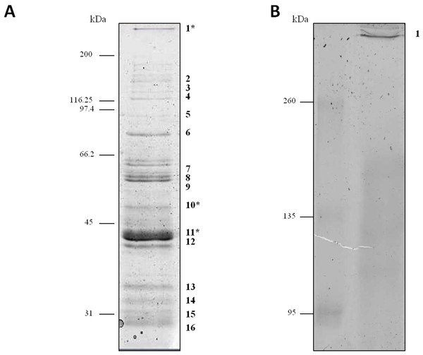 Protein profile of Clostridium septicum extracellular medium.