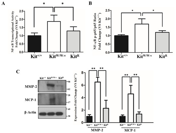Loss of c-Kit function in primary smooth muscle cells (SMC) is associated with increased NF-κB activity.