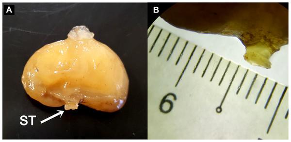 The ovoid-shaped externa of rhizocephalan parasite.