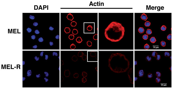 Actin cytoskeleton integrity is perturbed in MEL-resistant cell lines.