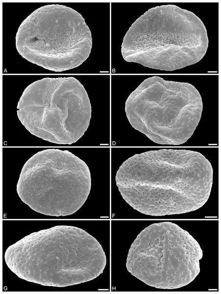 SEM micrographs of Saururus aquilae sp. nov. from the Upper Cretaceous (Campanian, 82–81 Ma) of Wyoming, western USA.